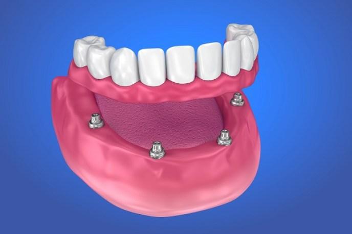 all-on-4-dental-implants-1