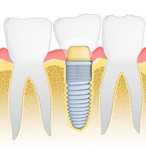 dental implants fremont dentist