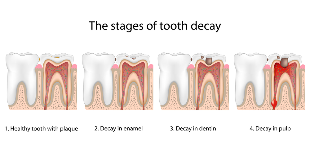 tooth fillings decay fremont dentist