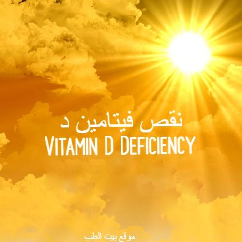 بيت الطب علاج نقص فيتامين د Vit D الاعراض والاسباب والوقاية