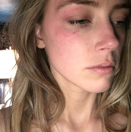 PHOTO: Amber Heard claims Johnny Depp assaulted her