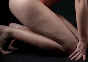 Cellulite comment la combattre - Bazarovore
