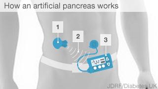 Pancreas infographic