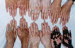 Vitiligo on hands.