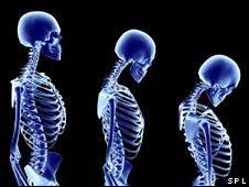 Efectos de la osteoporosis en el esqueleto
