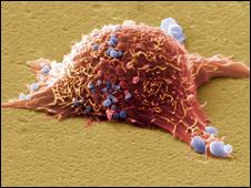 Célula de melanoma