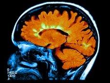 Escáner de cerebro con EM