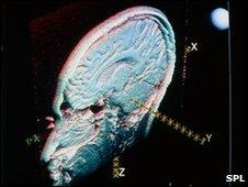 Imagen de magnetoencefalogragía