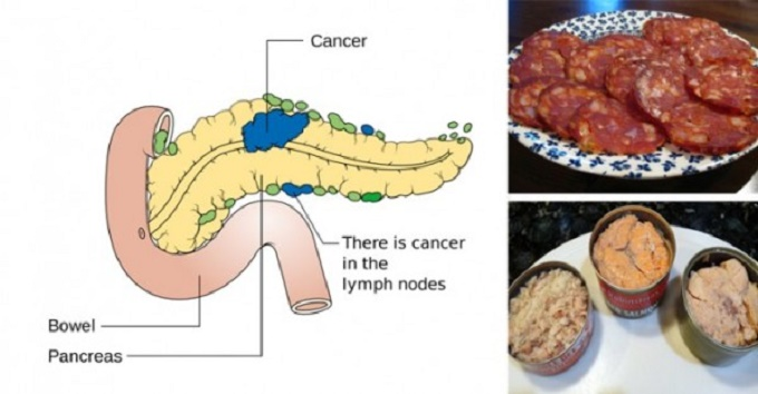 cancer causing food to avoid