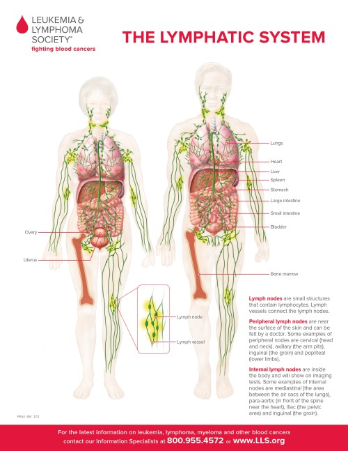 small resolution of lymphedema in cancer patients can be caused by the cancer affecting the lymph nodes or lymph vessels or it can be caused by treatment