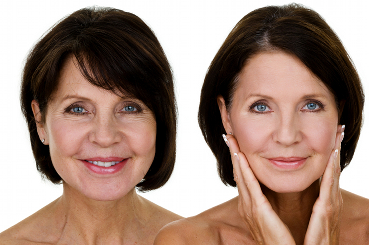 woman with anti-aging treatment showing before and after