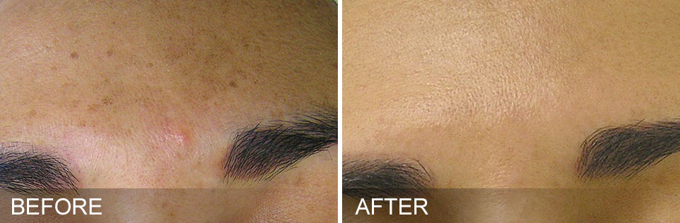 HydraFacial brown spots before and after treatment