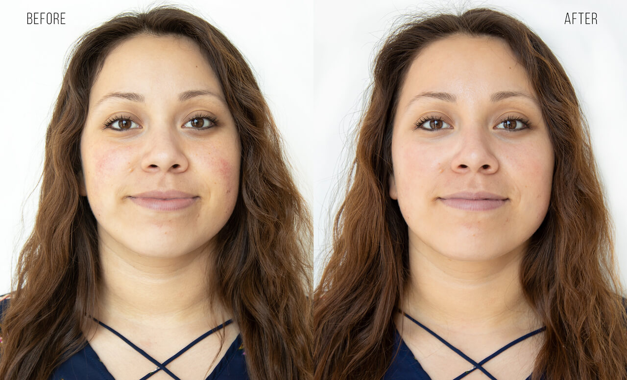 HydraFacial before and after photo of redness treated after the facial