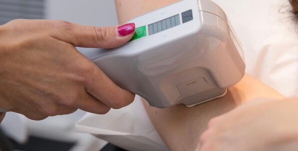 miraDry axillary underarm sweat treatment with radio frequency technology being performed