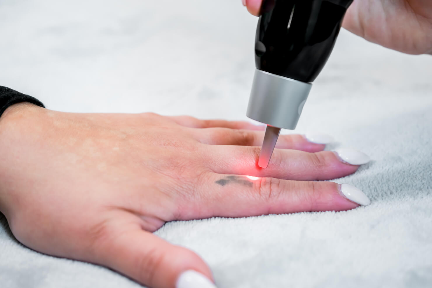 Surrey laser tattoo removal on finger with picosecond technology