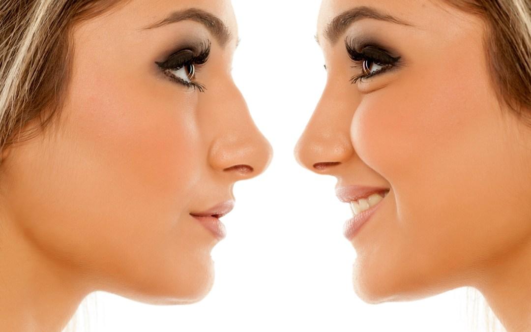 Estética Facial- Rinoplastia-