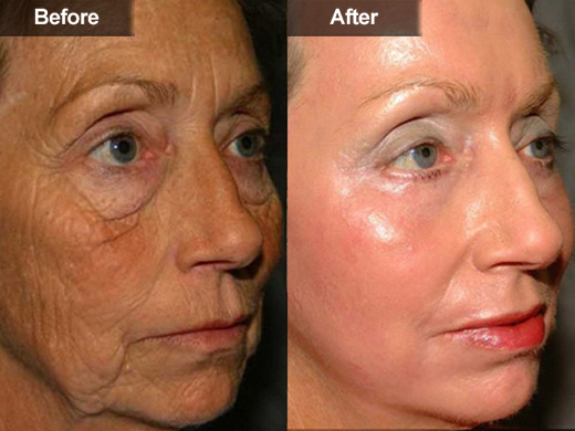 Laser Surgery Acne Treatment