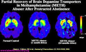 Brain Hijacks - Addiction Is Responsible And Work As A Hijacker, Collected Unique Picture No-00032.