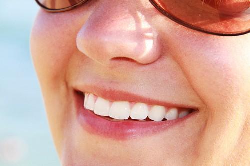 Whiter Teeth More Confident Smiles - Beach Braces ...