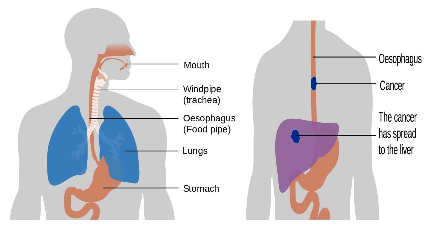 hight resolution of diagram of the esophagu and trachea