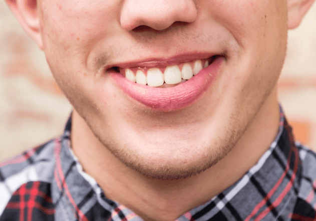 Having Straight Teeth Can Positively Impact Your Confidence