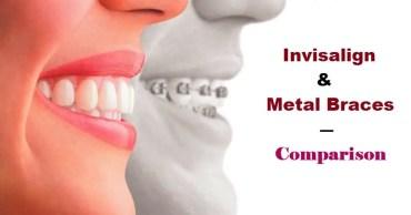 Invisalign & Metal Braces - Comparison