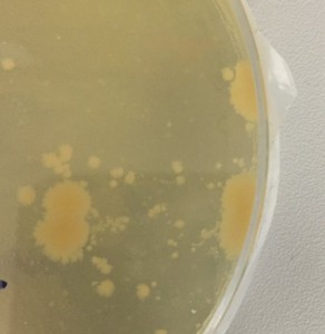 E Coli on a petri dish