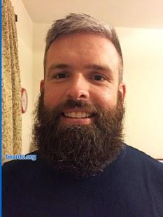 Ben's beard at four months