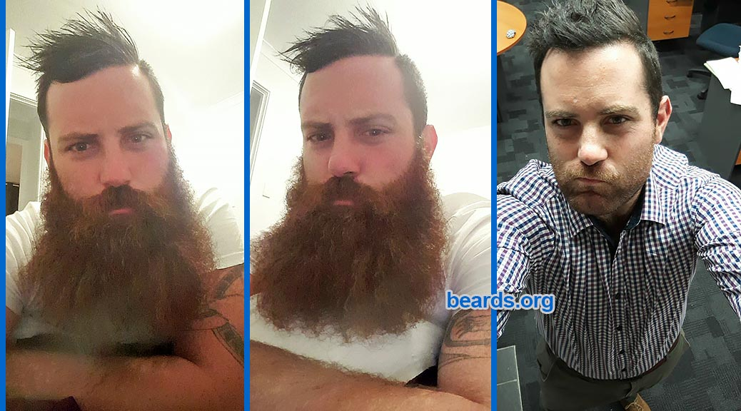 shave beard, grow beard featured image