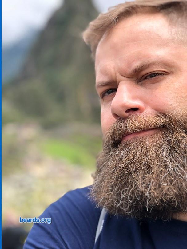 Chris' beard update photo 4