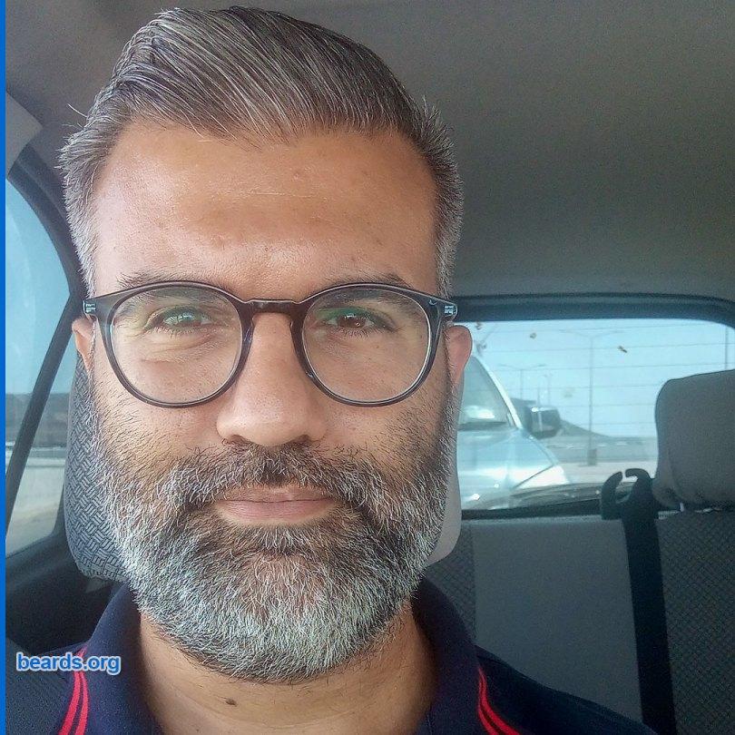 Jimmy's beard growth on day 12