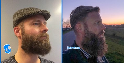 William's beard in 2019 and in April 2021