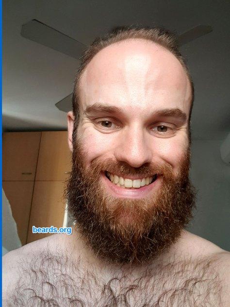Michael's beard in late September 2020.