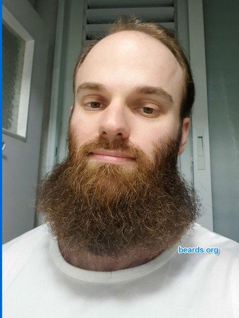 Michael's beard at the end of November 2020.