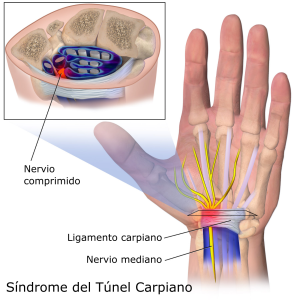 Carpal_Tunnel_Syndrome-es
