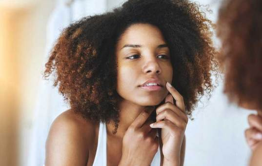 Why You're Having Breakouts (Acne, Pimples, etc) and How to Stop It