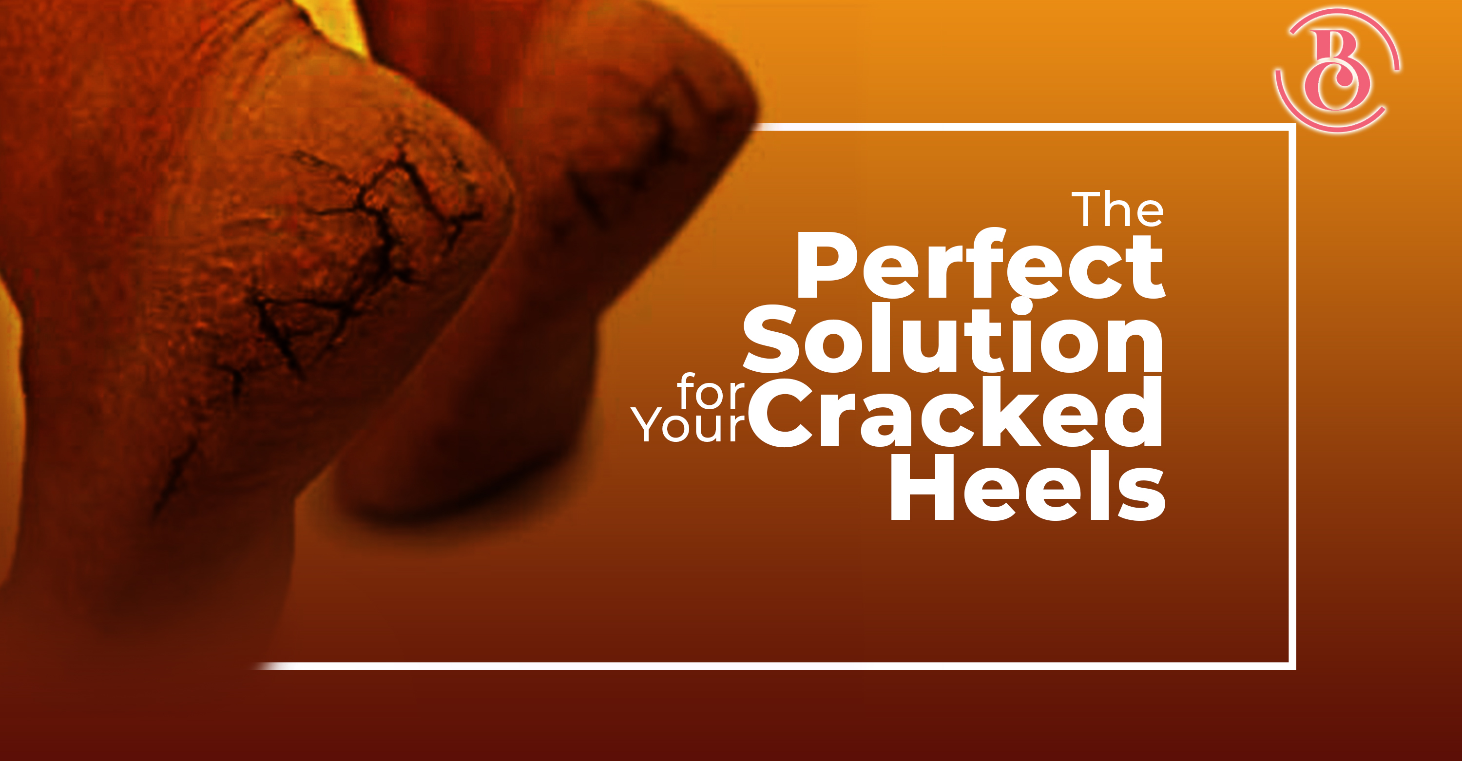 9 Tips to Help Heal Your Cracked Heels