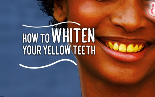 Top 9 Tips for Whitening Yellow Teeth