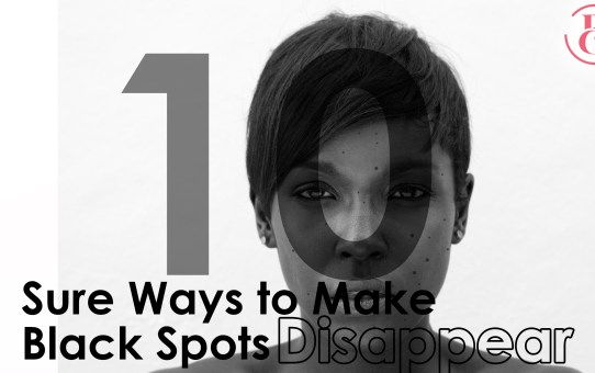 10 Sure Ways to Make Your Black Spots Disappear