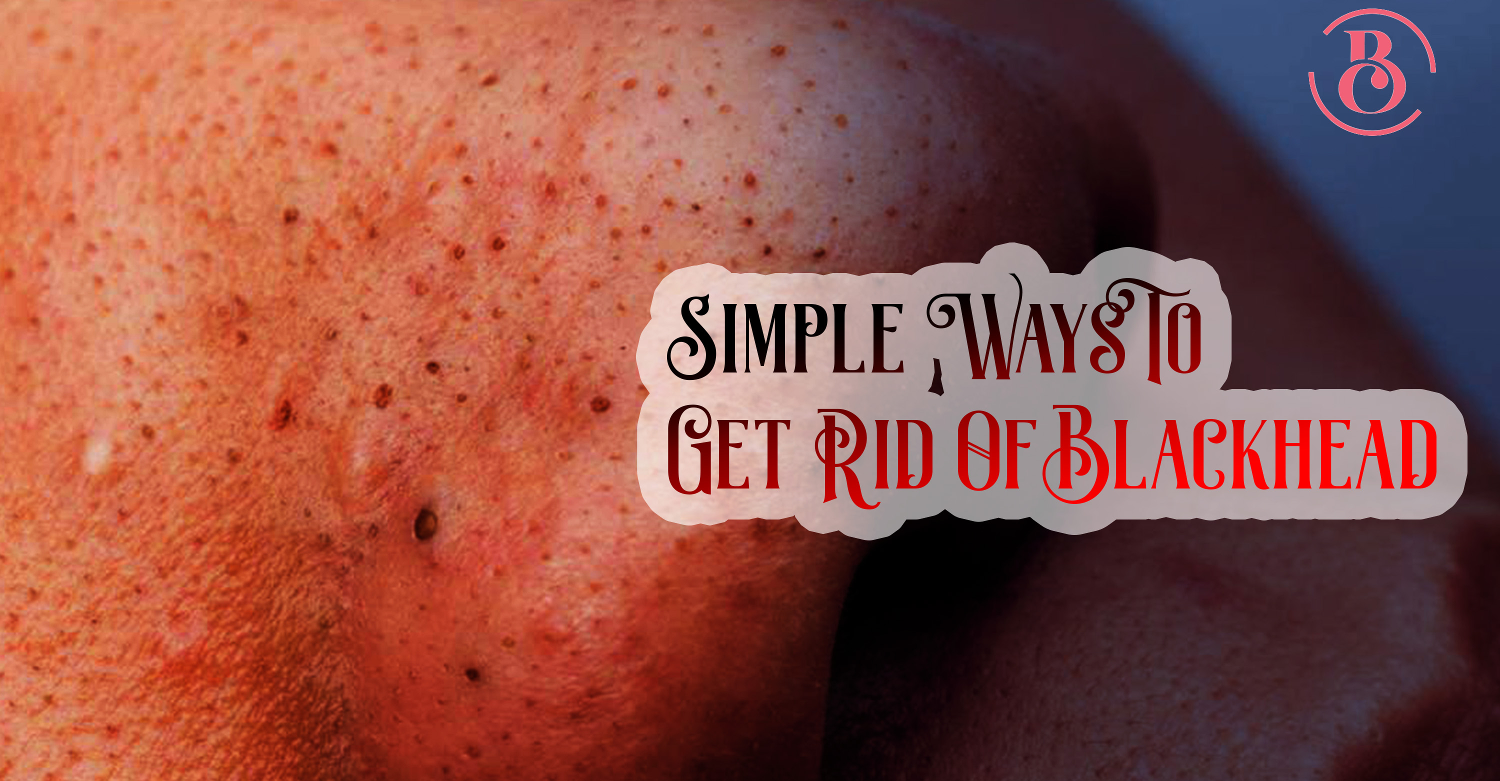 8 Simple Ways to Get Rid Of Blackheads