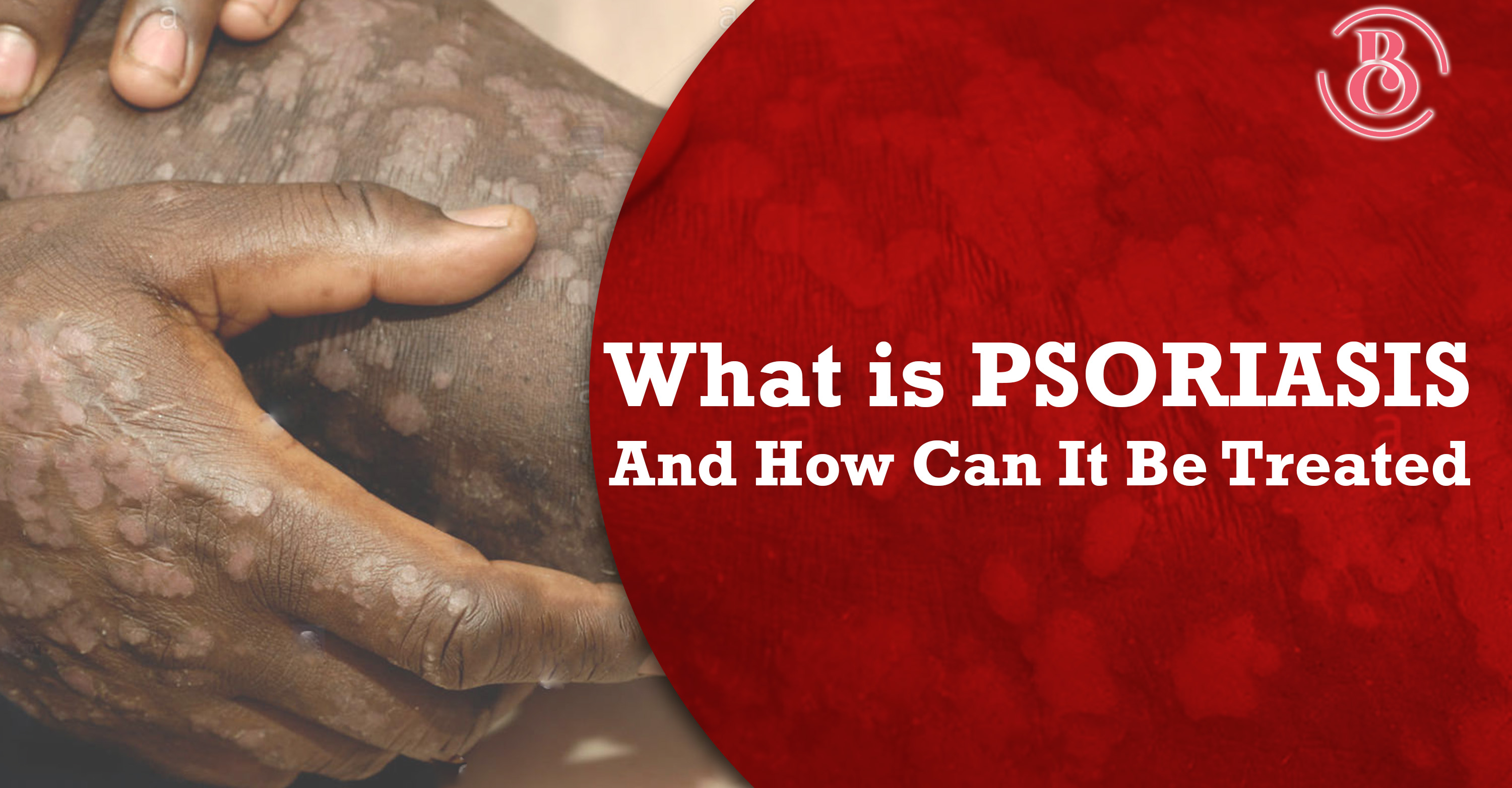 What Is Psoriasis and How Can It Be Treated?