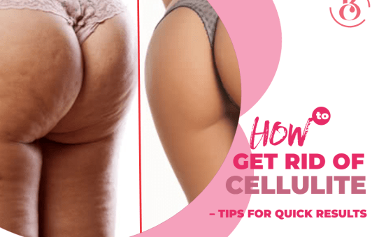 How to Get Rid of Cellulite – Tips for Quick Results