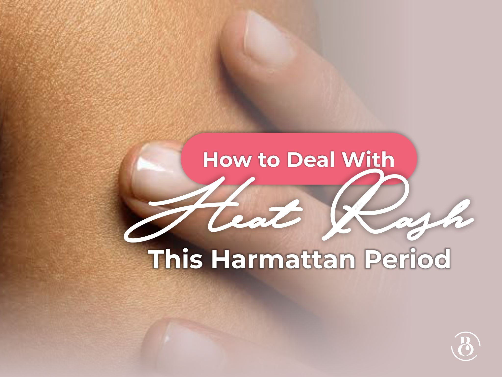 How to Deal with Heat Rash This Harmattan Period