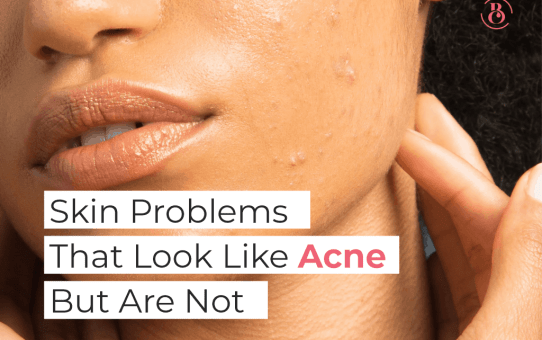6 Skin Problems That Look Like Acne But Are Not