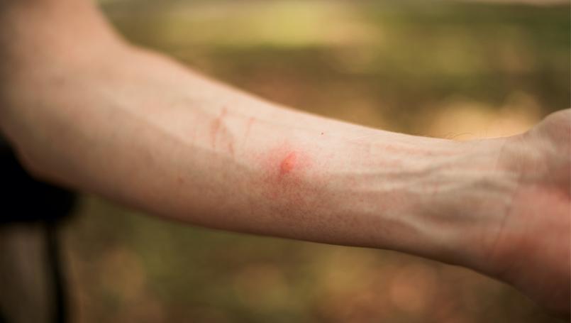 common bug bites and