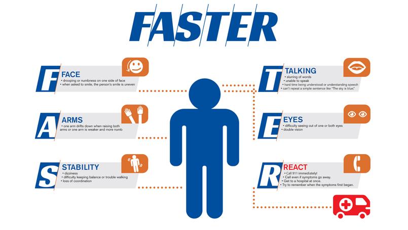 stroke symptoms from fast
