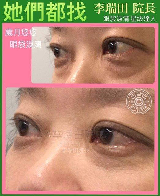 眼袋淚溝 李瑞田院長熟齡眼部手術 - 李瑞田院長高階眼美形