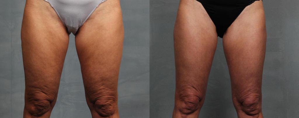 Cellulite on legs