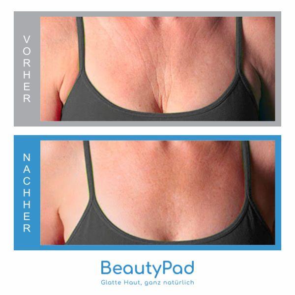 BeautyPad vorher-nachher