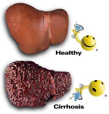علاج تشمع الكبد بالاعشاب